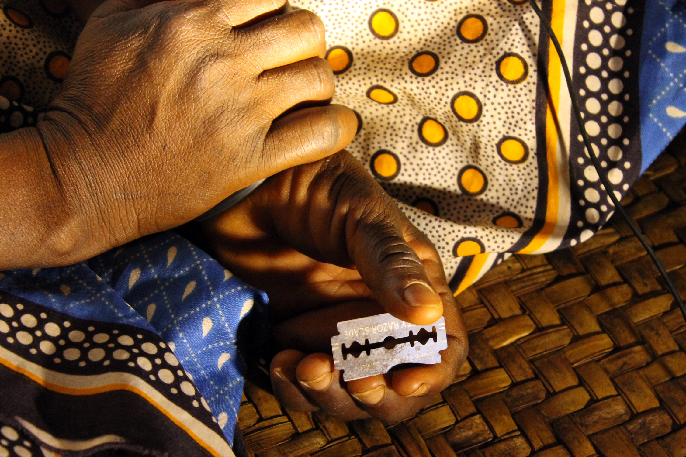 a study of female genital mutilation A study based on data from six african countries found that female genital mutilation–related obstetric complications accounted for 01 to 1 percent of total government spending on women of reproductive age (15-45 years of age.